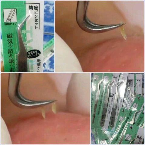 (ปากงอ)ที่หนีบสิว แหนบคีบสิว เป็นอุปกรณ์ใช้สำหรับกด และคีบ หรือดึงหัวสิวออกได้ง่าย