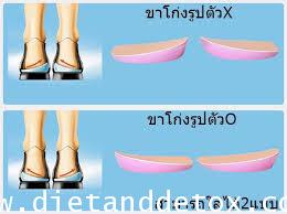 แผ่นรองส้นเท้าสำหรับผู้ที่เดินขาโก่งเป็นรูปตัวX/O