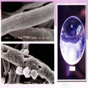 ไตรโคเดอร์ม่า เชื้อราไตรโคเดอร์ม่า กำจัดโรคพืช